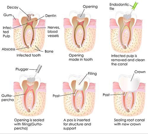 Root Canals In Guilderland